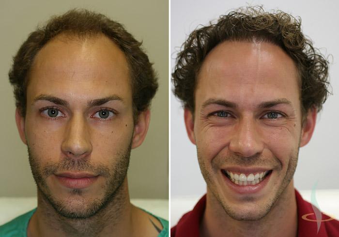 A sinistra: prima / a destra: dopo 2° operazione