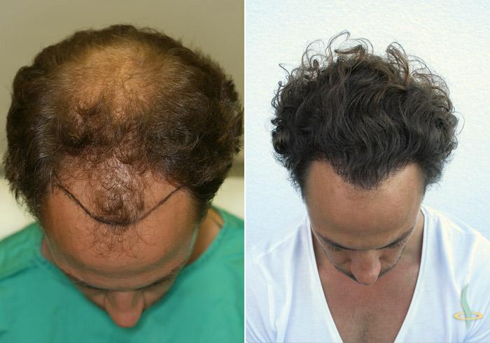A sinistra: prima / a destra: dopo 3° operazione