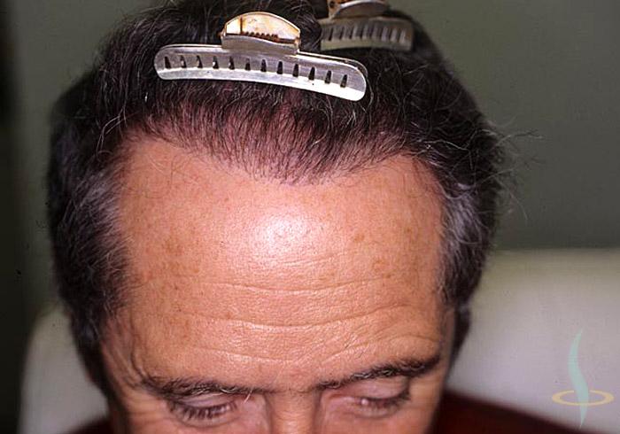 Attaccatura dei capelli