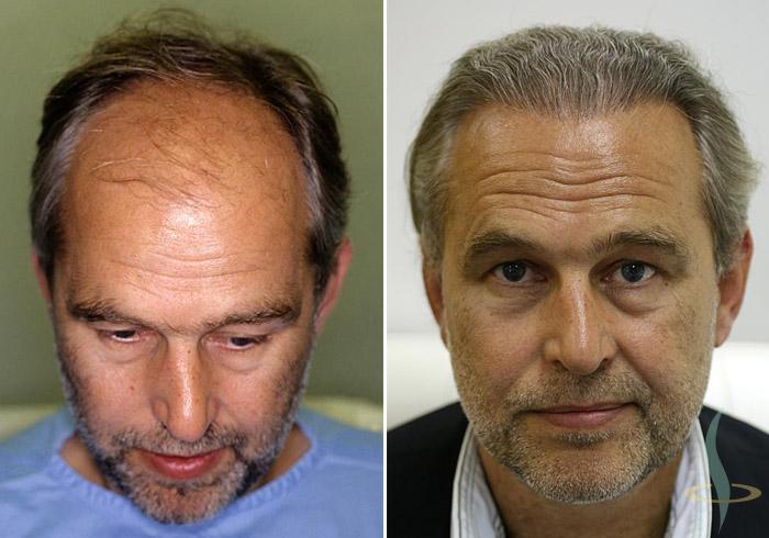 Links: vorher / rechts: 8 Monate nach dritter Operation (total 2800 Grafts)