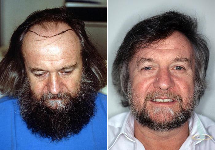 A sinistra: prima / a destra: 1,5 anni dopo 2° operazione