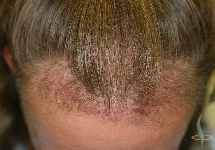 Attaccatura dei capelli dopo 1° operazione