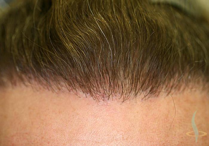 Attaccatura dei capelli dopo 2° operazione